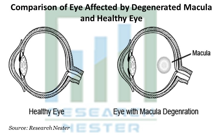 Comparison of Eye Affected by Degenerated Macula and Healthy Eye